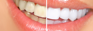 Cosmetic Dentistry teeth whitening Waltham Belmont Newton Watertown MA cosmetic dentistry Cosmetic Dentistry 42