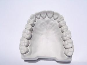 upper jaw dental implants Dental Implants: Pros And Cons Dental Implants Pros And Cons