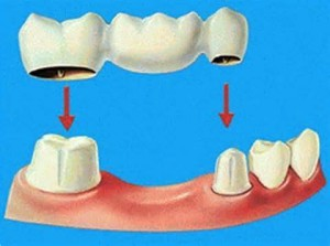 Dental Bridge dental bridge Is a Dental Bridge Right for Me? Dental bridge dentist Newton Watertown Cambridge Brighton MA