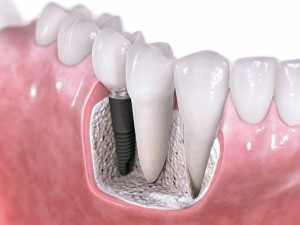 Watertown MA dental implants | Newton MA dental implants dental implants Dental Implants Watertown Newton Cambridge dental implants dentist