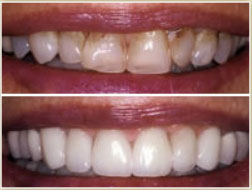 Dental veneers before and after cosmetic dental care Veneers - Improve the Color and Appearance of Your Teeth Cambridge Brighton Cosmetic Dental Care Watertown Newton MA
