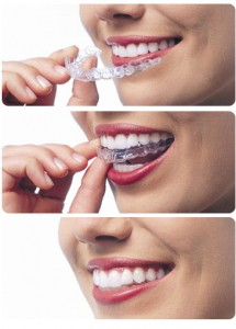 Invisalign dentist Watertown Belmont Newton Cambridge MA invisalign dentist Invisalign Dentist Invisalign   dentist Watertown Belmont Newton Cambridge MA