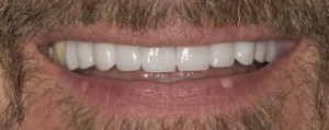 Dental crowns after dental crowns Should I consider dental crowns? Dental crown after 374733