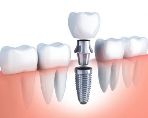 dental implant in Watertown MA dental implant Replace Your Missing Tooth with a Dental Implant p