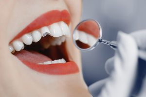 repair broken damaged tooth dental crown What are the Benefits of Tooth Fillings? repairs broken damaged tooth